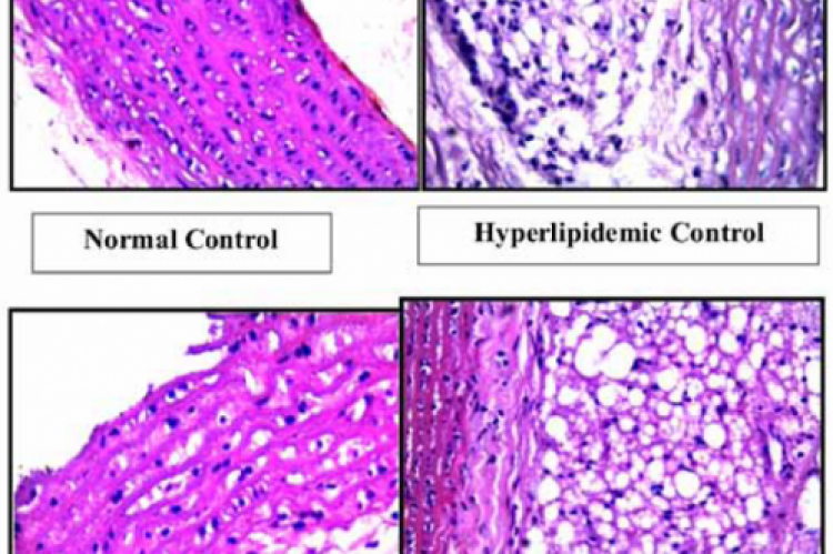 Fig 1. Histopathological study of the effect of ethanolic extract of leaves of Bryophyllum pinnatum on the aorta in hyperlipidemic cocktail induced hyperlipidemia in rats