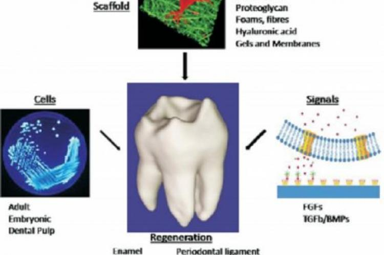 Prerequisites for regeneration of tooth