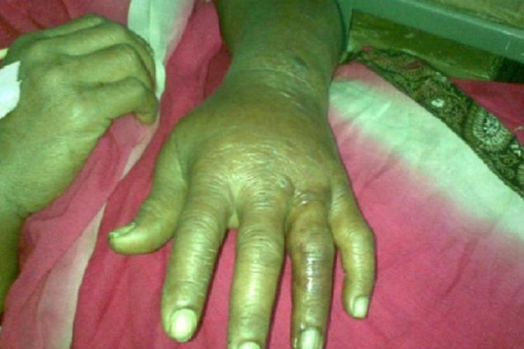 Showing the swollen hand