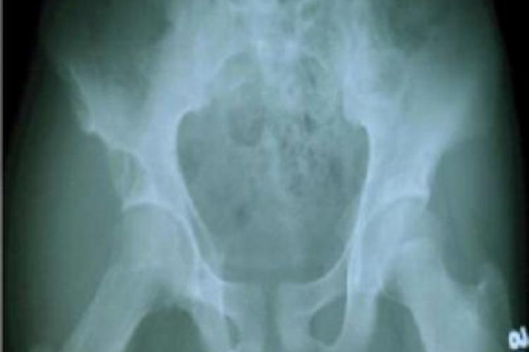 Radiograph of pelvis with both hips showing elongation of neck of right femur with overlying soft tissue swelling shadow