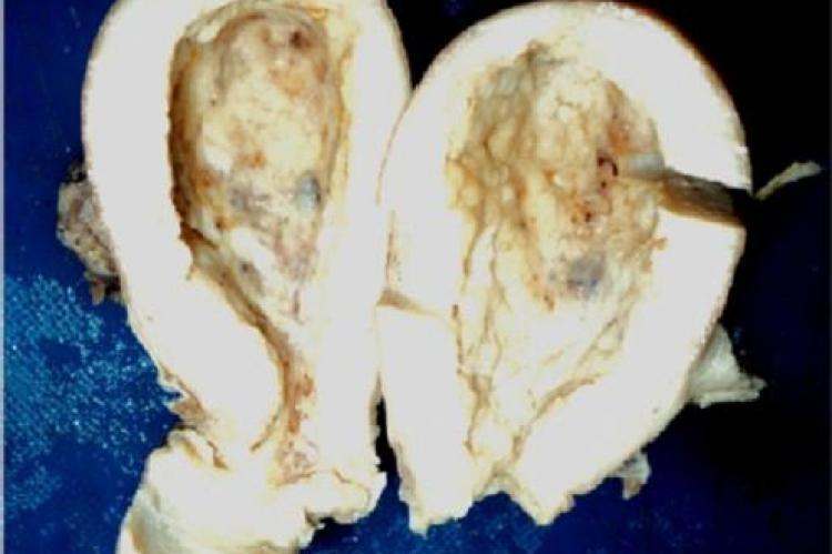Dilated uterine cavity showing irregularly folded & thickened mucosal surface having small gray white nodular growth.