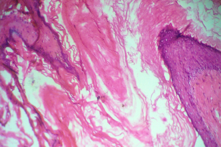 Epidermal cyst of breast, histologically showing thin epidermal epithelium and pools of keratin material (H & E Stain. 150X)