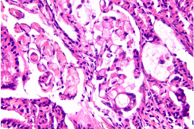 Histopathology showing signet ring cell adenocarcinoma of stomach ( H & E X 400)