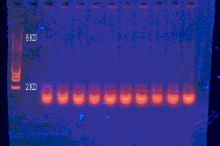 Gel electrophoresis of plasmid DNA isolated from methicillin resistant Staphylococcus aureus isolates.