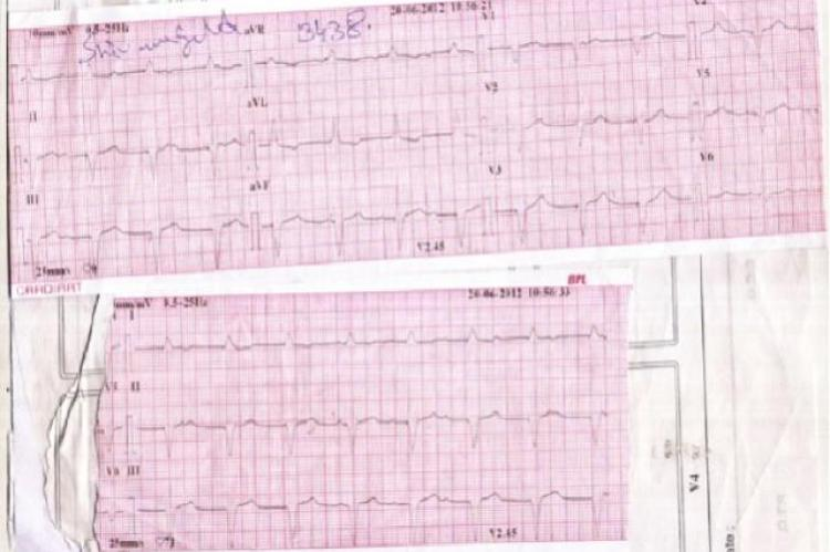 His ECG showed LBBB with pacing spikes