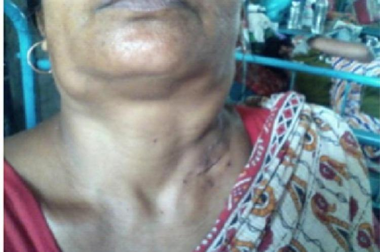 The massive lymph nodes on both sides of neck of the patient