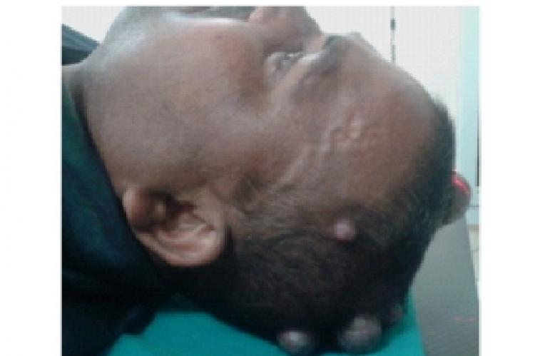 Multiple circumscribed scalp swellings.