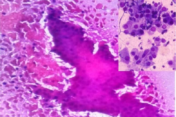 Cytology of oncocytic cells in sheets and singles