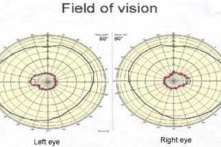 Perimetry chart: field of vision