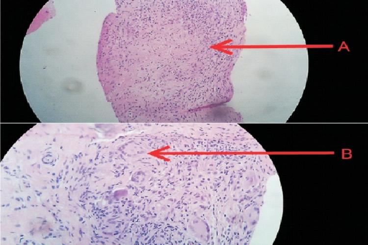 Synovial biopsy specimen showing caseous granuloma (A) and Langhans Giant cells (B)