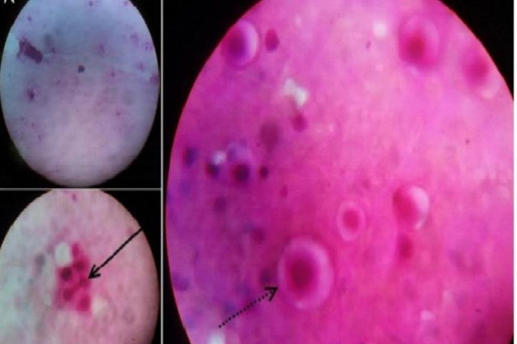 Microscopic picture of pulmonary Fine needle aspiration showing yeast cells visible in 10× magnification