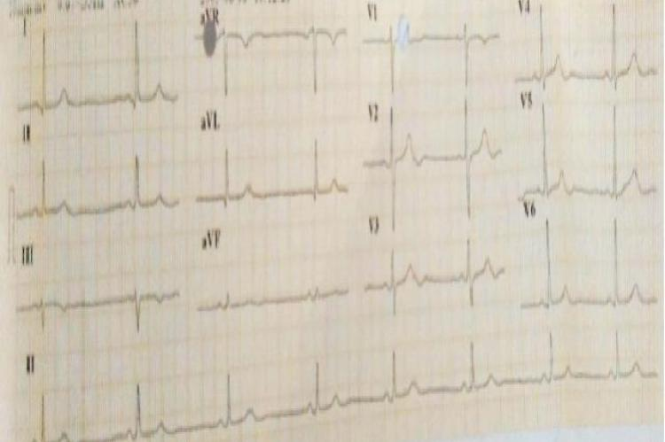 : ECG showing sinus bradycardia upon administration of steroid pulse therapy on the third day of hospitalization