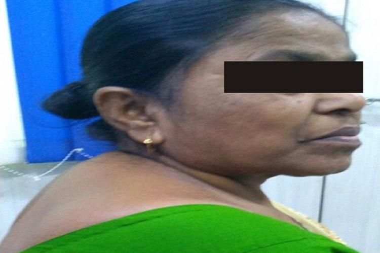 Patient with features of buffalo hump and facial puffiness