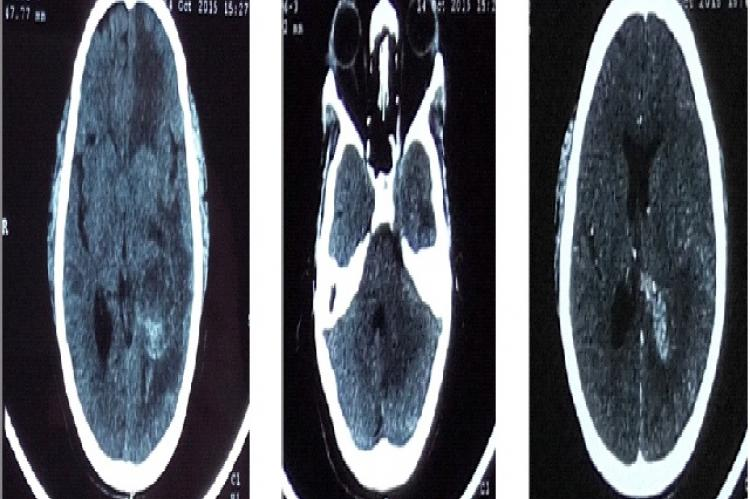 CECT scan axial section showing multiple brain metastases in left frontal, temporo-parietal region (a) & cerebellum (b), mass is compressing and displacing the left lateral ventricle (c)