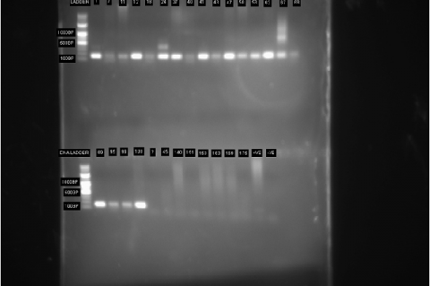 Detection of HPV isolate by Gel electrophoresis using 1.5% Agarose Gel Stained With Ethidium Bromide