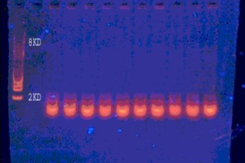 Gel electrophoresis of plasmid DNA isolated from methicillin resistant Staphylococcus aureus isolates.