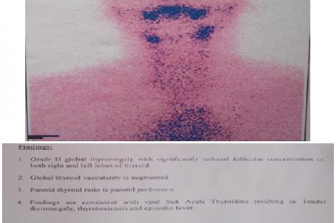 Thyroid Scinti Imaging Report